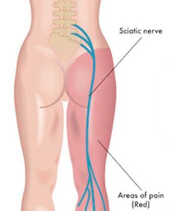 علت درد سیاتیک