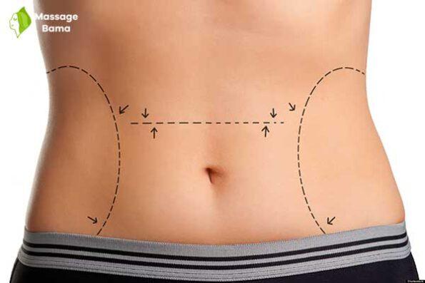انواع روش های جراحی لاغری